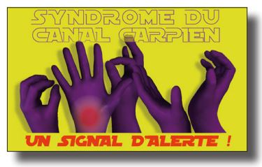 syndrome-du-canal-carpien